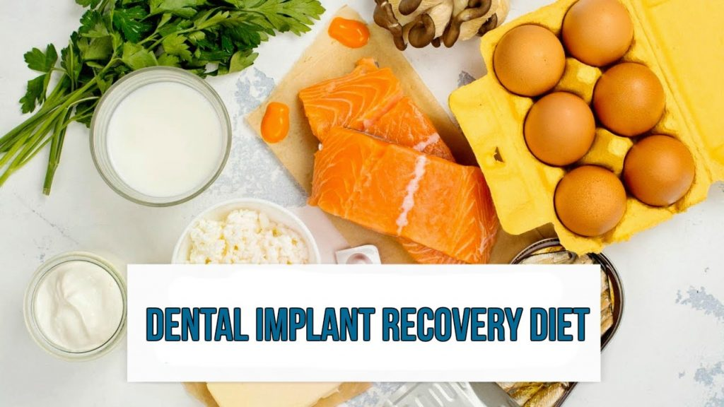 Dental implant recovery diet